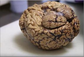 Photo of اكتشاف دماغ غامض  في جمجمة مقتول