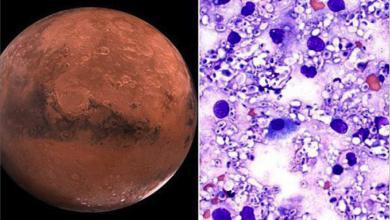 Photo of فطريات تشيرنوبل أول غزاة المريخ  ودرع البشر في سكناه
