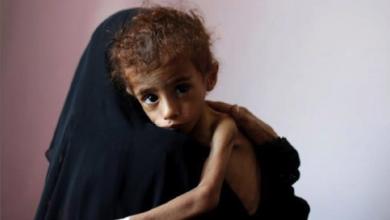 Photo of تحذير أمميّ من مجاعة جديدة في اليمن