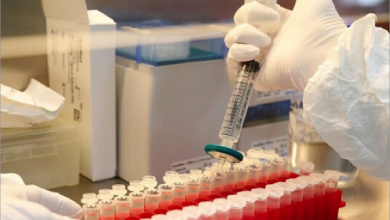 Photo of بعد تسجيل أول لقاح ضد فيروس «كوفيد ـ 19» في العالم